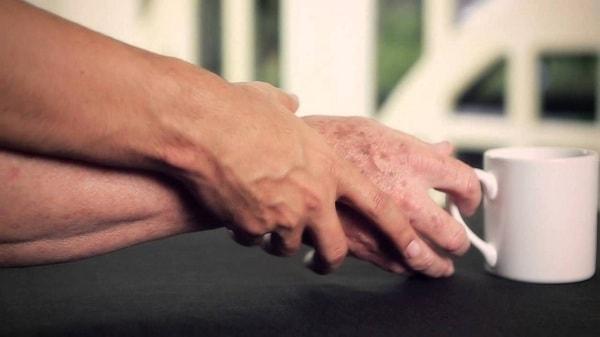 bệnh run vô căn và Parkinson